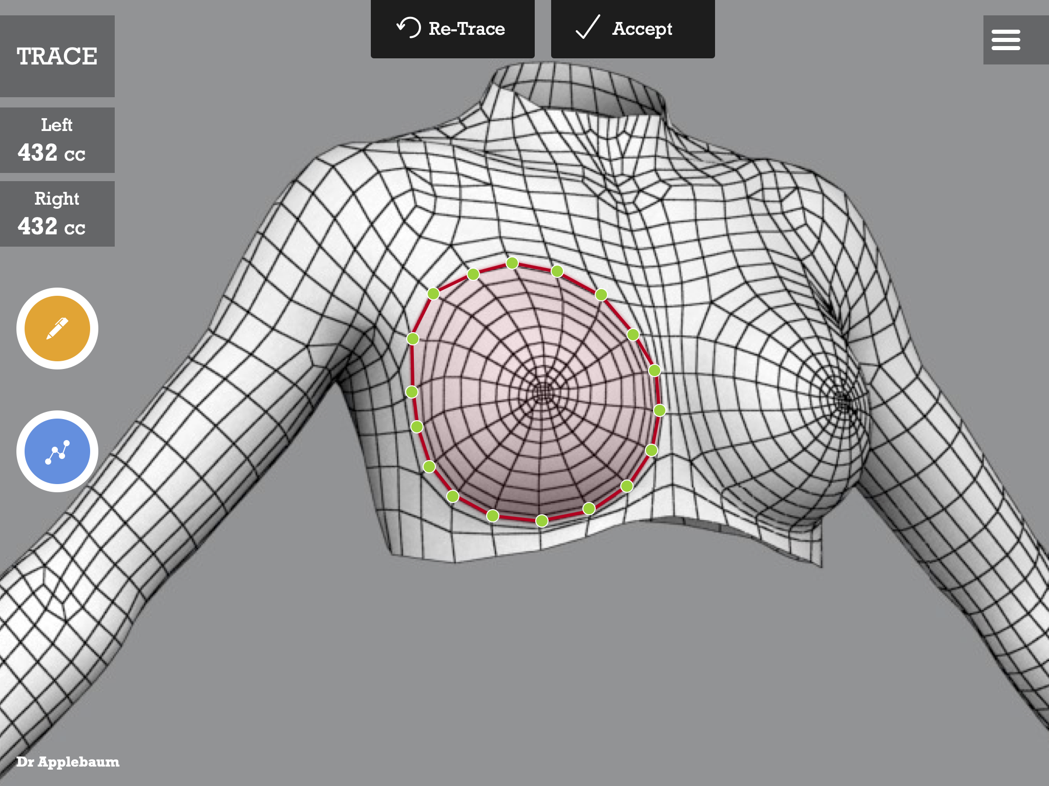 Surgery Trace on Body Scan Wireframe